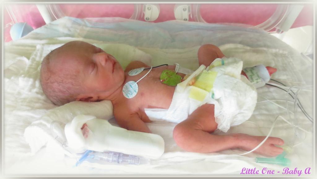 Birth - Twins Baby A